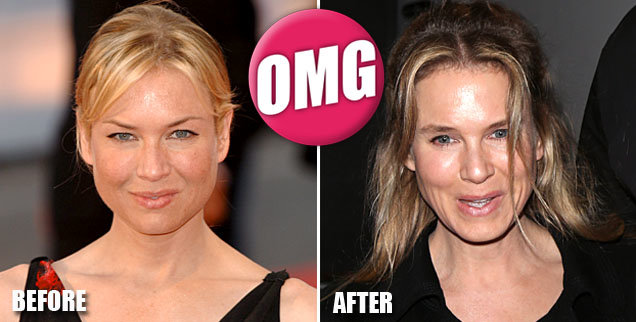 renee_zellweger_before_and_after_wide